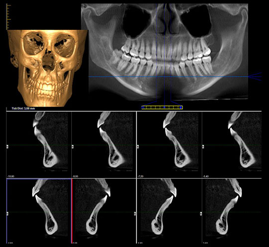 diagnostico 3d implantes dentales
