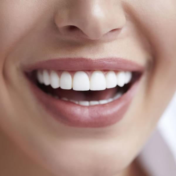Blanqueamiento dental en Granada