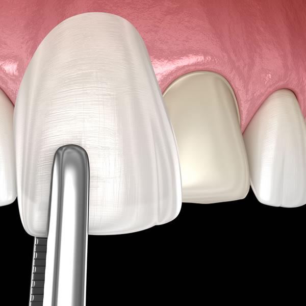 Carillas dentales composite Granada