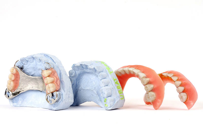 Prótesis Tratamientos Dentales