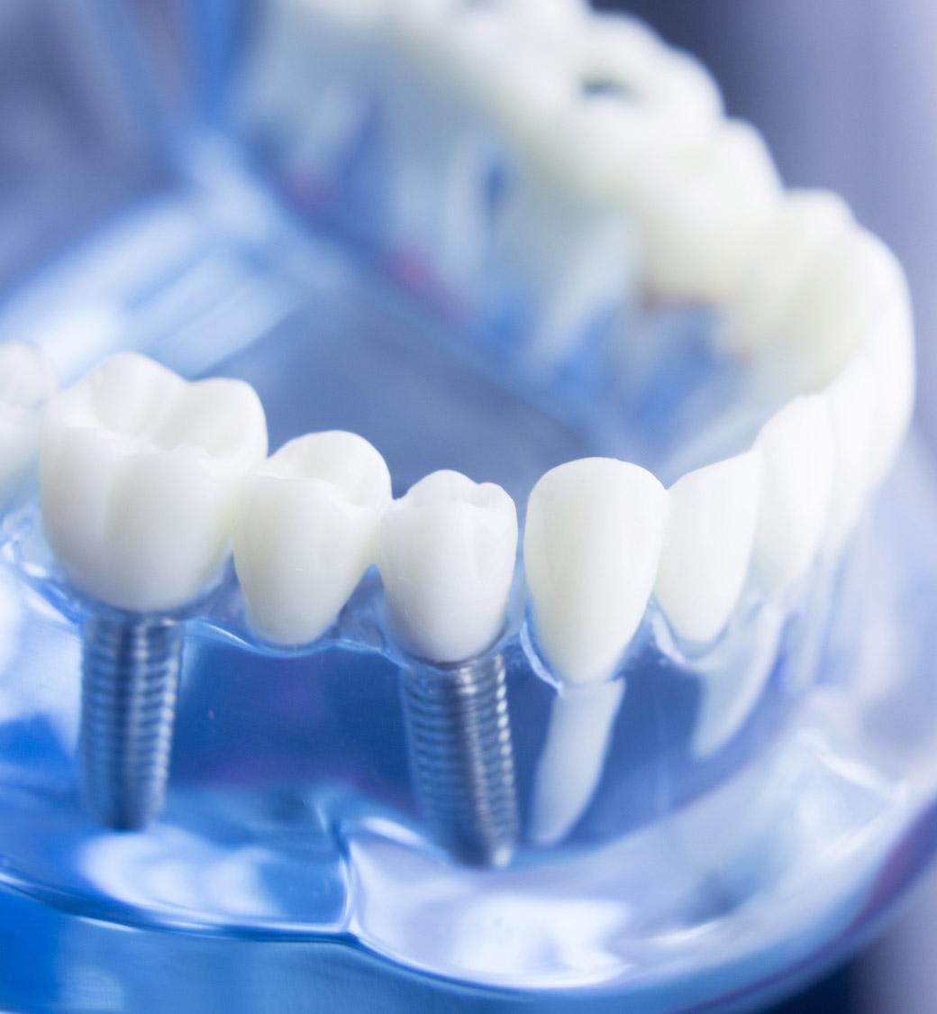 Implantes Dentales Clínica Noguerol